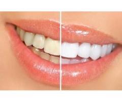 Pastă de dinţi AP-24® pentru albirea dinţilor